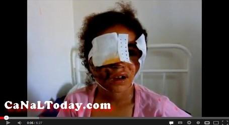 الطفلة وئام تعرضت لمحاولة إغتصاب وإعتداء بالمنجل وعلى وجهها حوالي 50 غرزة