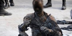 عاطل عن العمل يتحول إلى جثة متفحمة بعد إضرام النار في جسده بسبب مشاكل زوجية بالبيضاء