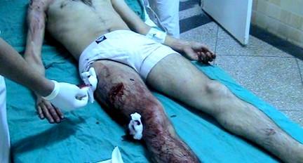 خطير.. إصابة مخزني بخنجر من طرف إرهابيي بوليساريو في مدينة العيون