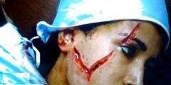 زوج يربط زوجته ويحاول احراقها و يمزق وجهها بالسكين بجماعة جربيل
