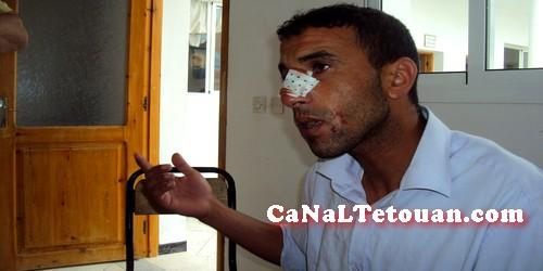 اعتداء عنيف على حارس مدرسة بمرتيل