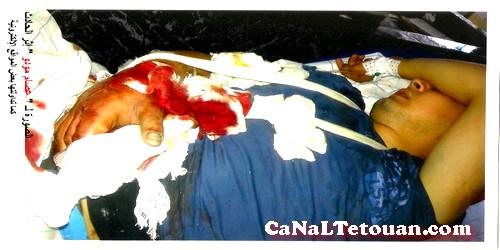 إ-م-ش يتضامن مع تقني الإسعاف الذي تعرض لحادث في مصعد مستشفى بتطوان