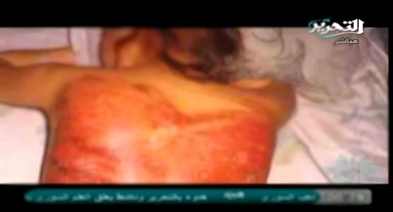 جلد مغربية وسجنها بتهمة الدعارة بالسعودية