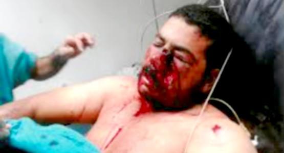 هؤلاء مغاربة قتلهم العسكر الجزائري بالرصاص على الحدود
