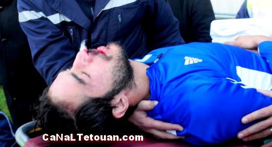 مرتضى فال يعتذر للاعب الرجاء ياسين الصالحي بعد إصابته بكسر على مستوى الأنف