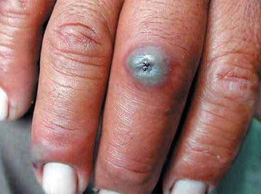 الوردي: مرض الجمرة الخبيثة يوجد في أستراليا وفرنسا وليس المغرب فقط