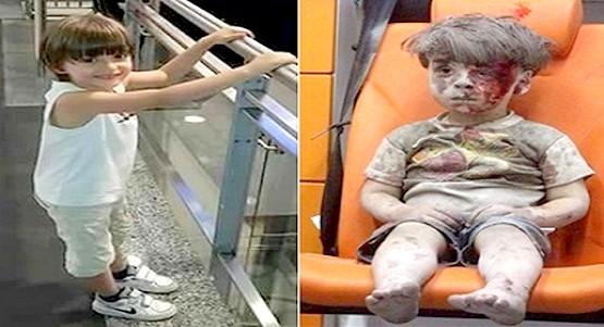 """من عالم البراءة إلى صدمة نفسية.. قصة""""عمران"""" الطفل السوري الذي أبكى الملايين"""