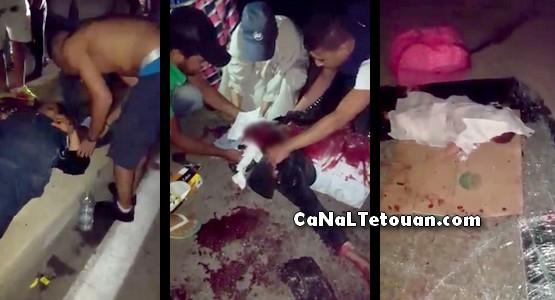 قتلى وجرحى في حادثة سير بمنطقة عين الحصن بتطوان (شاهد الصور)