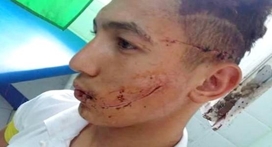 بالفيديو … لاعب المنتخب المغربي يروي تفاصيل ليلة تعرضه للاعتداء بمرتيل
