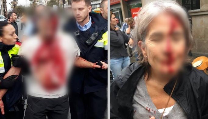 إصابة 38 شخصا بجروح بعد تدخل الشرطة الإسبانية لمنع إجراء الاستفتاء حول استقلال كاتالونيا
