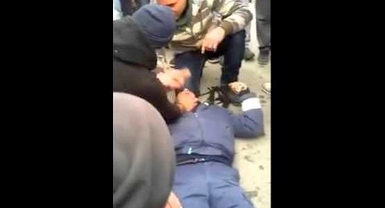 """السيبة …. لص"""" يشرمل"""" وجه شرطي بشفشاون ويتسبب له بجروح بليغة"""