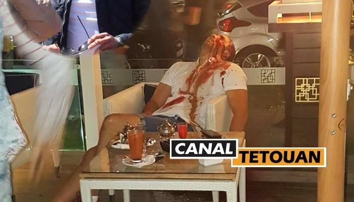 مقطع يوثق لحظة قتل الشاب رميا بالرصـاص بمقهى مراكش (شاهد الفيديو)