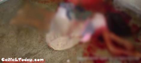 الدار البيضاء : متزوج حاول الانتحار بعد أن ذبح معشوقته من الوريد