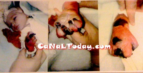 بسبب إهمال الأطر الصحية بتطوان … الرضيعة إسراء تفقد يدها اليمنى