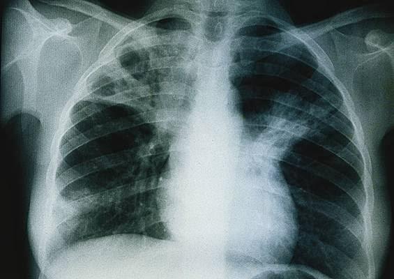 هــام.. مواد سامة قاتلة تستعمل في بيوتنا تسبب أعراض و مضاعفات صحية خطيرة